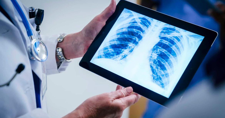 چرا مراکز تصویربرداری از دو نرم افزار پکس و سیستم اطلاعات رادیولوژی استفاده می کنند؟